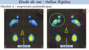appuis et meilleur equilibre hallux rigidus grâce reflexologie globale canadienne lyon